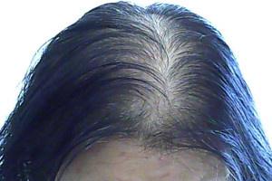 头顶头发越来越稀少