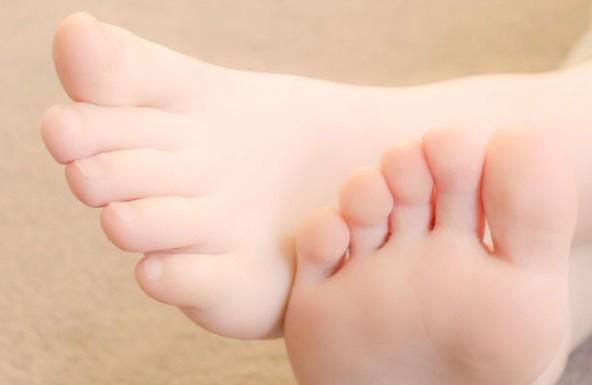 脚底脱皮是怎么回事 如何不脱皮