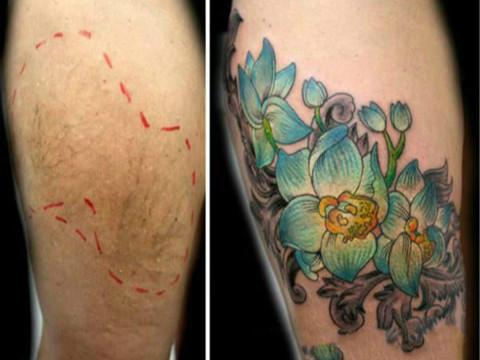用纹身遮盖身体皮肤疤痕