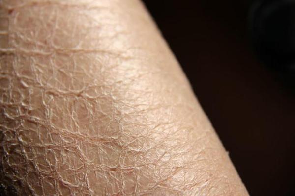 拯救皮肤干燥脱皮4大良方!