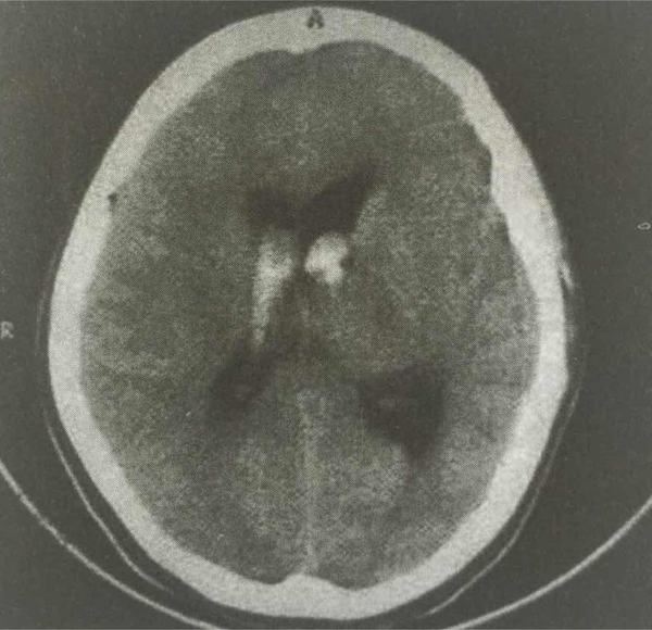 病例分享|23岁女性头痛头晕后死亡 原因何在?