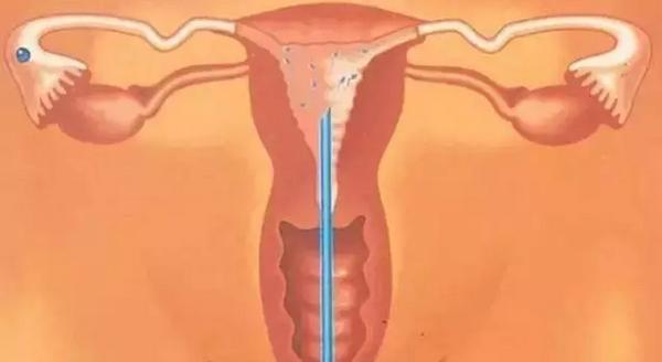 人工受精前要做哪些檢查