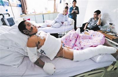 小梓维被诊断为烧伤30%,正在等待植皮手术摄影/本报记者 郁骁