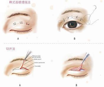 韩式双眼皮对比_上班族女性 选择哪种双眼皮比较好