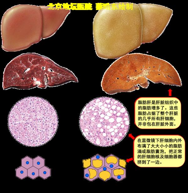 轻度脂肪肝注意事项_脂肪肝哪种牌子比较好 脂肪肝茶价格