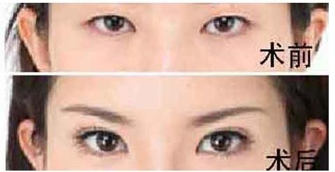 也第一时间明白为什么会有那么多人选择眼部整形手术.总结起来做