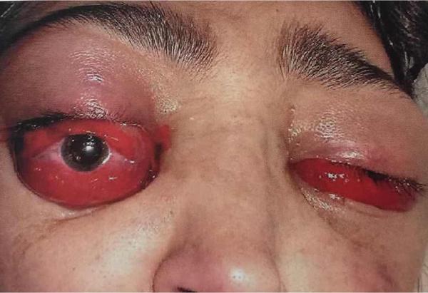 眼球出血_病例分享|中年男性,复视,眼球突出,结膜充血1天