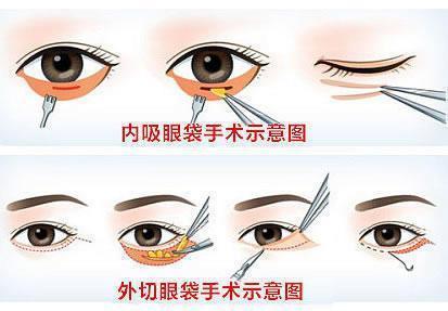 无创祛眼袋内修复