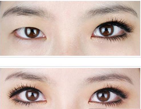 单眼皮自然变双眼皮的小秘诀图片