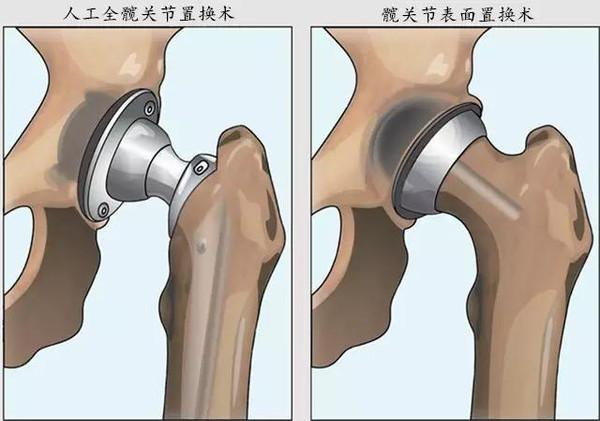 Image result for 髋关节,置换术