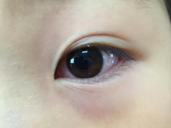 孩子眼圈发红是怎么回事