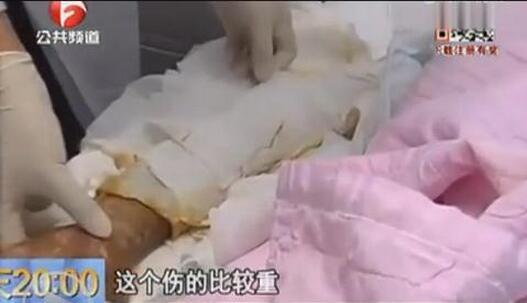 女人口图片_女子从恶狗口中救下女童自己四肢惨被啃完(组图)
