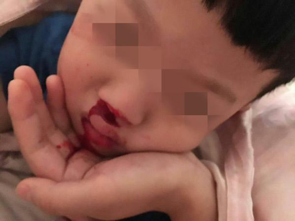 上海幼儿园塑胶操场疑有毒续:官方已委托检测