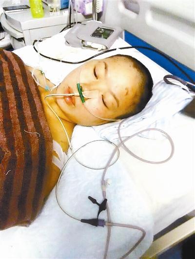 李娟仍在重症监护室期待植皮手术