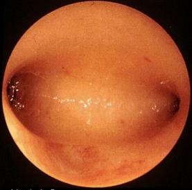 宫腔镜对试管婴儿成功率的影响(图3)