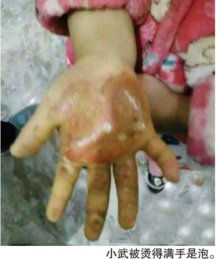 6岁女童遭狠心母亲毒打 遍体鳞伤有感染迹象(图)