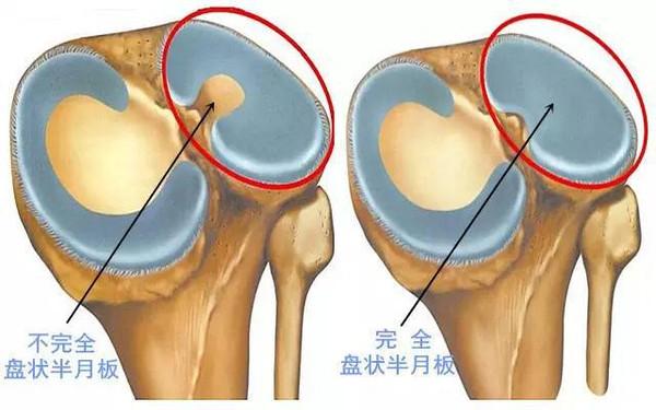 膝关节半月板损伤的来龙去脉