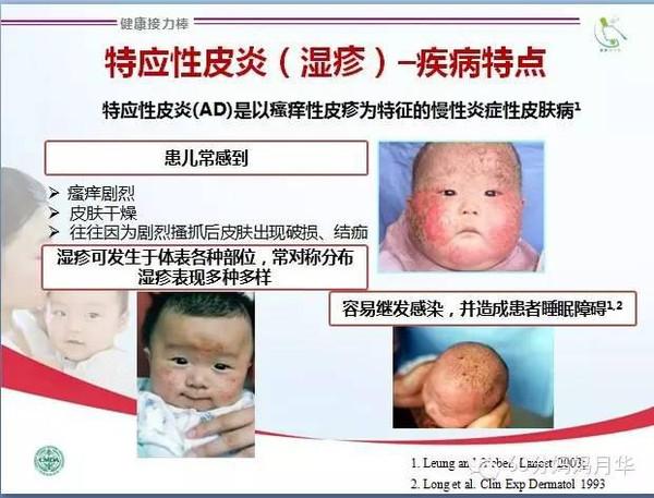 儿童医院治疗湿疹