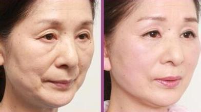 用了这个洗脸方法,50岁也不会出现皱纹,教你正确
