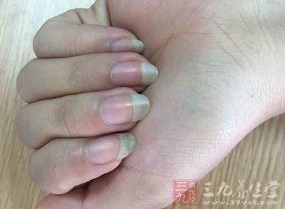 现代女性更多是为了美丽而保留长指甲,还有一些人是为了清洁耳垢、抓痒而保留长指甲.