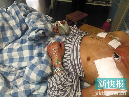躺在病床上的小田满身可见多处刀伤。