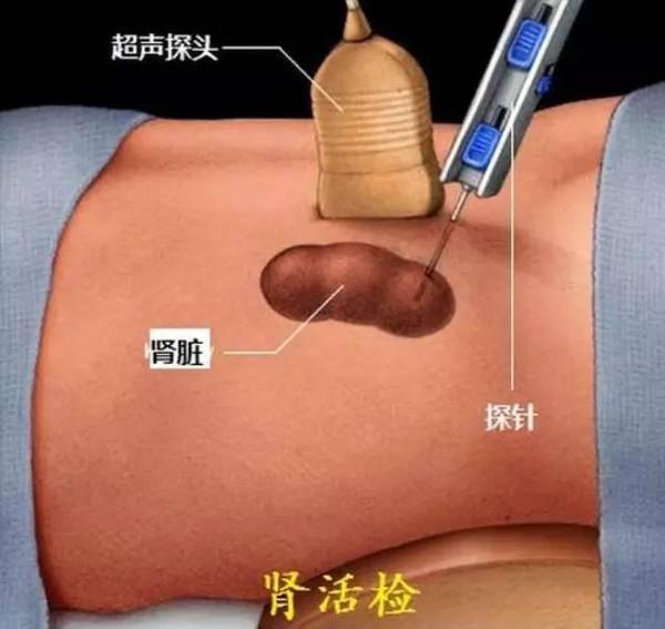 哪些肾脏病患者不宜做肾活检