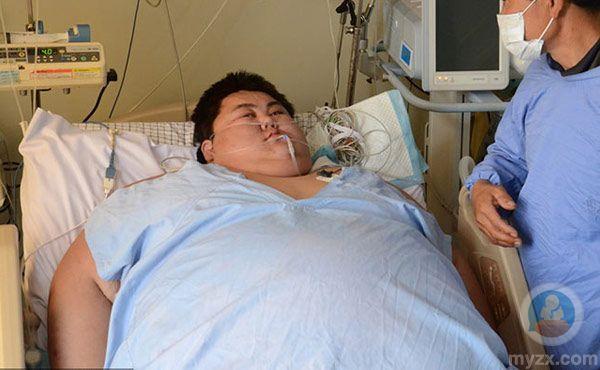 中国第一胖切胃减肥曾1次吃100个串喝两箱啤楼梯爬减肥方法图片
