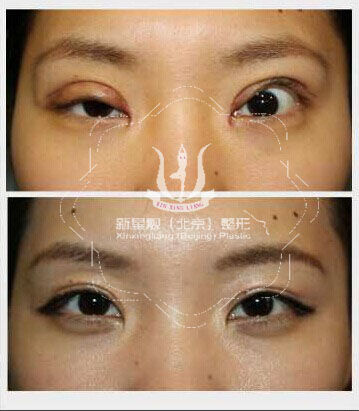 双眼皮手术失败