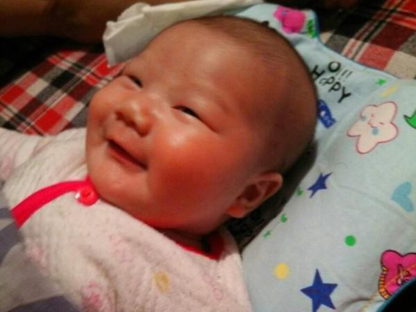 宝宝脸上长斑怎么办 宝宝脸上长斑的原因图片