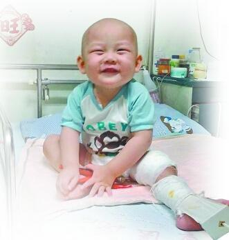 2岁幼儿忍痛挖骨疗伤60天 妈妈:没钱只能等死