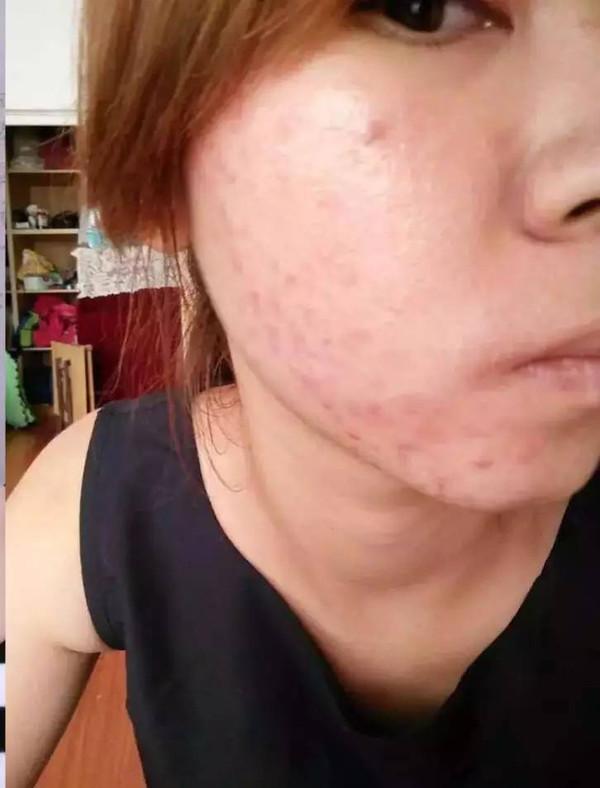 肌肤敏感要看,脸上红血丝必看,有痘有斑的更要看图片
