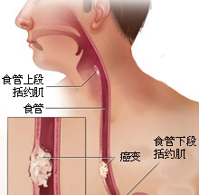 食道癌的症状