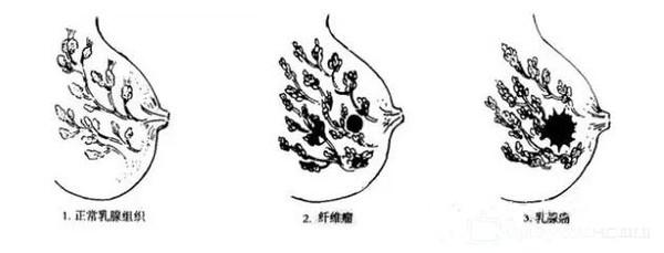 动物 简笔画 手绘 细菌病毒 线稿 600_229