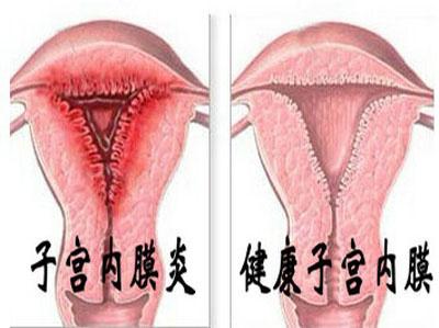 女性支原体症状有哪些