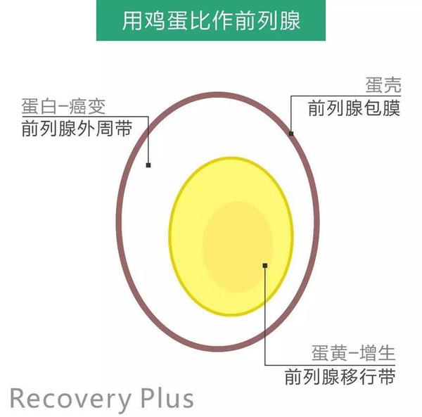 前列腺增生主要发生在前列腺中央区域的移行带
