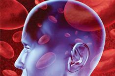 血小板减少治疗费用