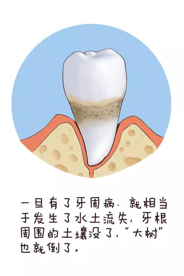 漫画解读:关于牙周炎、事儿那些洗牙恐怖漫画季第五