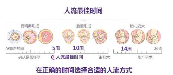 怀孕一个月想做人流_怀孕多少天做人流好?