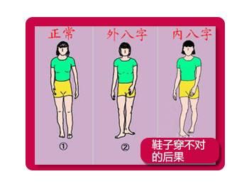 【v畸形?帮】畸形穿鞋不合适,小心足部粽子!孩孩子怎么包步骤具体红枣图片