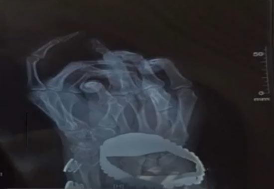 小王左手中指开裂(视频截图)