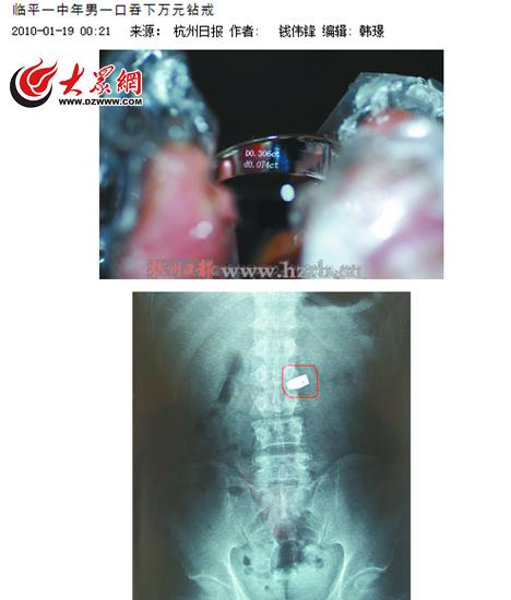 2010年,杭州媒体报道,一名男子在杭州临平一家银楼吞下一枚钻戒。