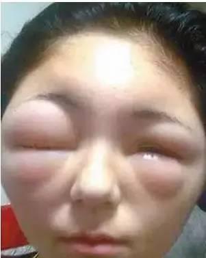 眼部皮肤过敏_花粉过敏眼睛肿,小儿花粉过敏图片,预防花粉过敏_大山谷图库