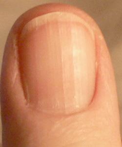 手指甲看健康_从指甲看孩子的身体健康状况