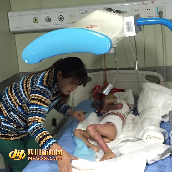 3岁男孩掉进鸡汤锅 全身超40%面积被烫伤(图)