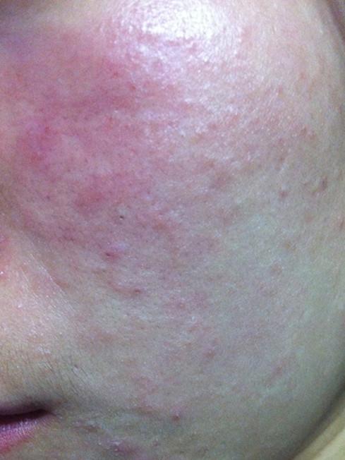 脸上过敏红肿痒怎么办?一招天然抗敏修复过敏