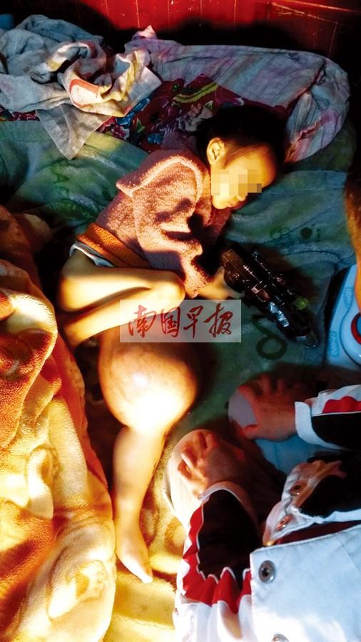 4岁男孩腿部肿瘤比头大 数十万治疗费无着落