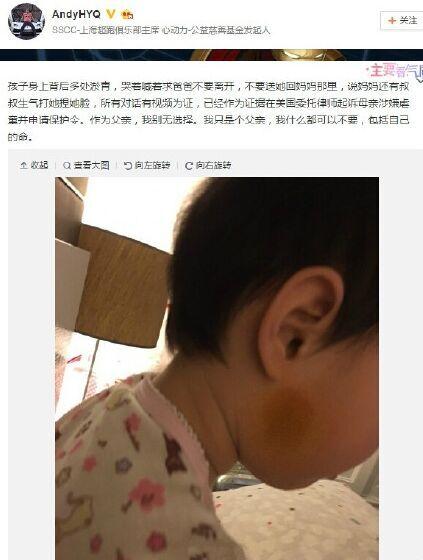 黄毅清:女儿暂呆美国 黄奕虐童官司无胜算