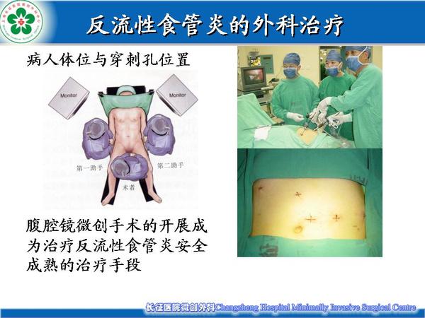 胃食管反流病药物治疗效果不好应该怎么办