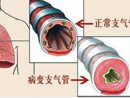 针对慢性支气管炎的日常生活护理事项-搜狐