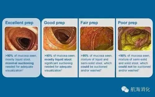 如何做到肠镜检查前高质量肠道准备?,肠镜检查前一天吃什么,做肠镜检查过程视频,检查肠道必须做肠镜吗,做肠镜检查大约需要多